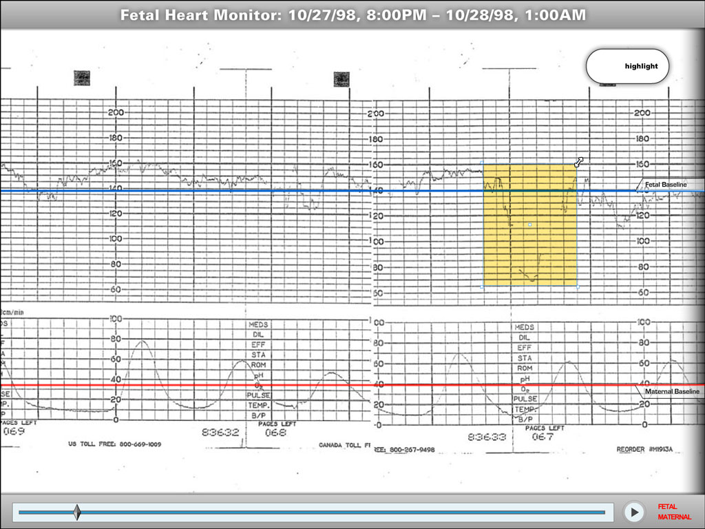 Still image of an interactive fetal heart monitor strip